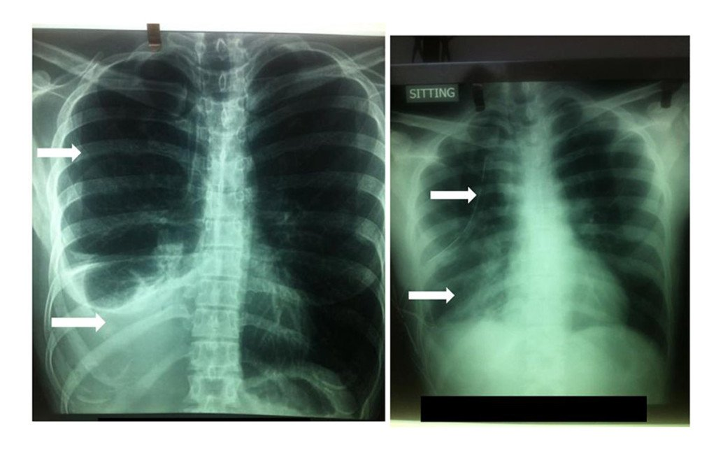 heamothorax