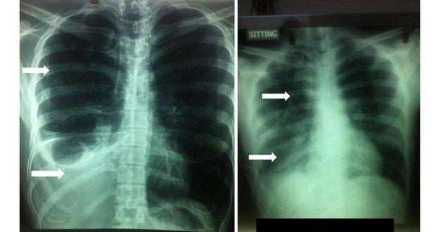 heamothorax